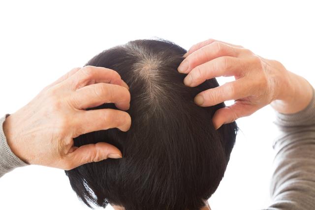女性の大敵!頭皮トラブルを防ぐ「乾燥対策」