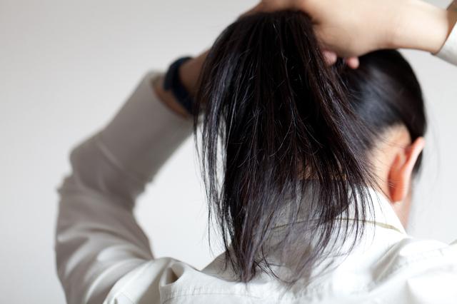 【博士の育毛診療日誌】ヘアスタイルが招いた脱毛症