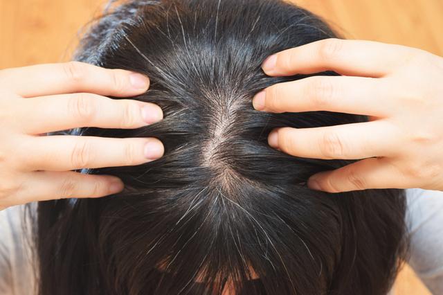 【育毛専門医が教える】冬の頭皮は「冷え」にご用心。血行不良が髪の成長を妨げる