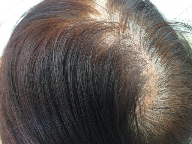 【博士の育毛診療日誌】コーム付きドライヤーによる機械的脱毛症